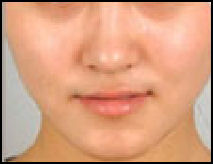 COSMETIC SURGERY IN CHINA   Facts and Details