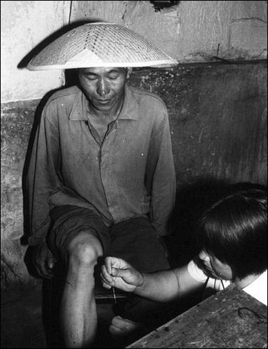 20111102-Wikicommons smoke barefoot doctor acupuncture.jpg