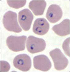20120216-malaria cdc  falciparum.jpg