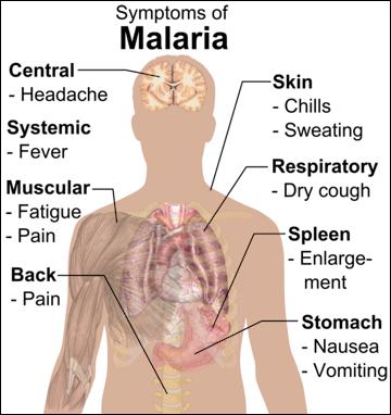 20120531-565px-Symptoms_of_Malaria.png